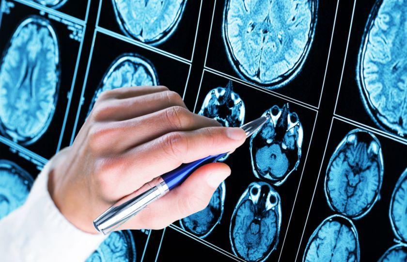 Na Parkinsonovu chorobu existuje lék. Teď jde o to, jak ho dopravit do mozku